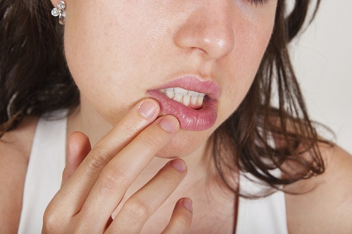Causes of Mouth Sores You Should Be Aware Of